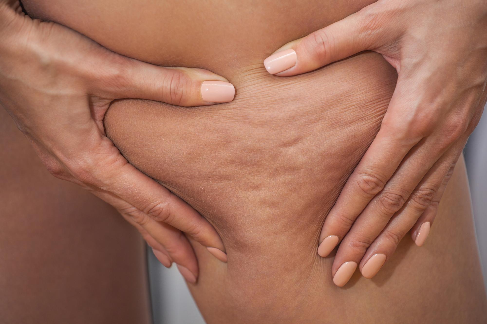 Mani di donna su gambe con cellulite